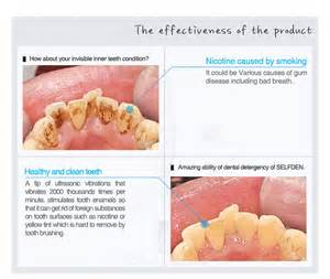 micropeeling cloth to whiten teeth picture 5