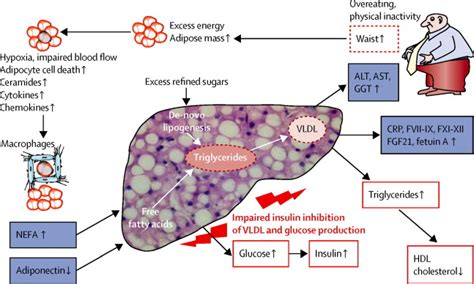 fatty liver syndrome in women picture 2
