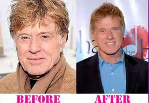 before and after anti aging picture 9