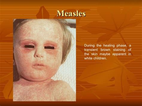 molescus viral skin infection picture 3