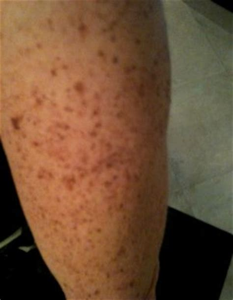 agnijith brown diabetic scars picture 5