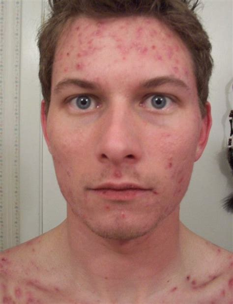 acutane for acne picture 9