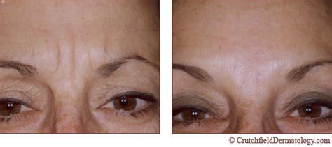 dermatology acne shots picture 13