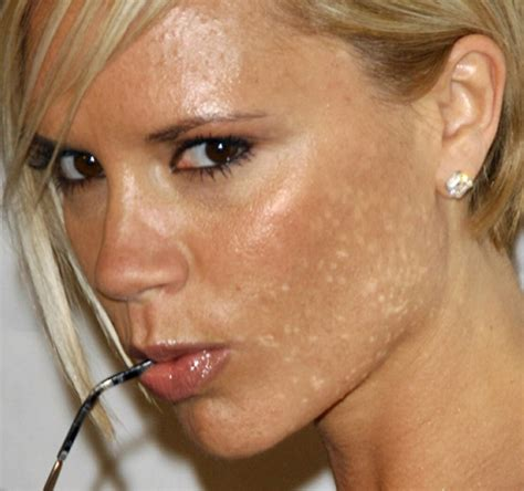 celebrities acne pictures picture 14