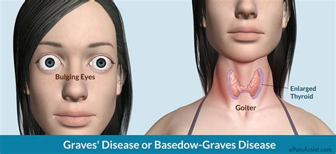 hashimoto thyroid disease picture 3