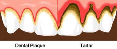 supplements that destroy tooth plaque picture 5