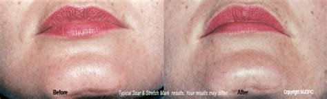 stretch mark removal in san diego picture 8