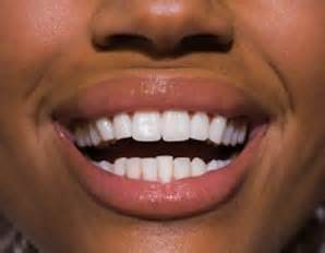 healthy teeth picture 17