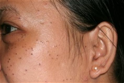 warts on face removal picture 2