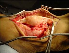 muscle tissue tumor picture 2