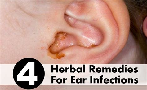 Herbal ear infection remedys picture 6