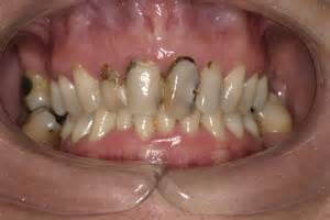 decaying teeth pictures picture 17