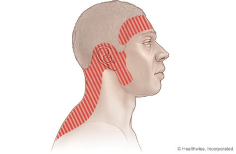 neck pain radiating to ear webmd picture 9