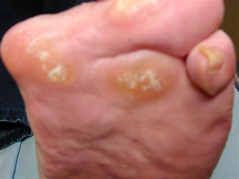 joint ball foot pain picture 10