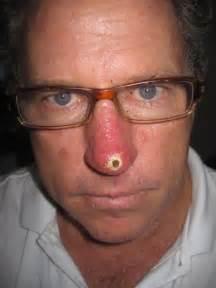 acne records picture 3