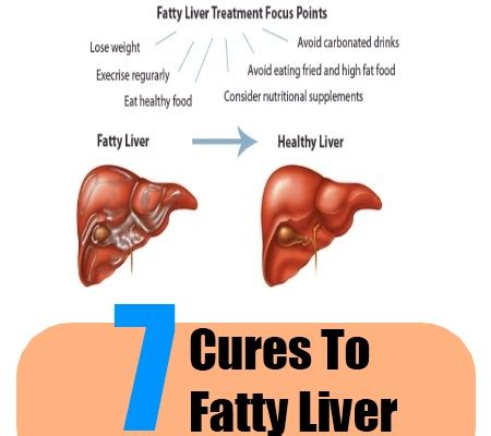 how to cure fatty liver disease picture 2