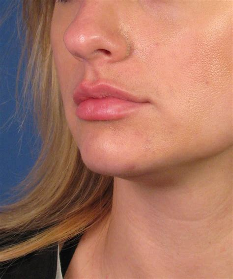 stop swelling from lip injections picture 6