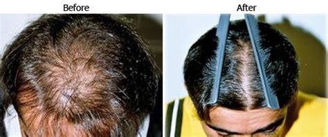 does revilus hair supplement helps in hair regrow picture 7