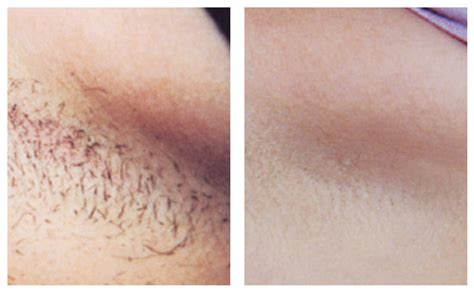 northern virginia hair removal picture 2