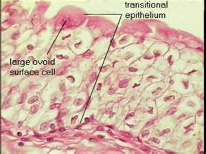 type of epithelium that lines the bladder quizlet picture 5