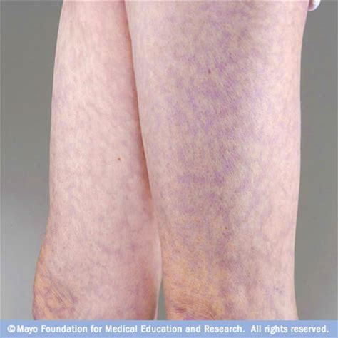 can infected stretch mark cause stomach pain picture 12