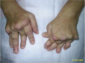 bilateral degnerative joint disease picture 3