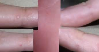 red wart or red bump on finger picture 19