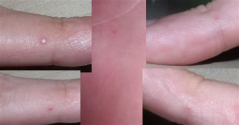 red wart or red p on finger picture 12