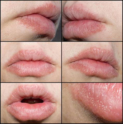 allergic reaction on lips pictures picture 1