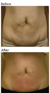 lipo red side effects picture 5