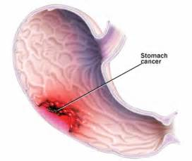 stomach intestinal cancer symptoms picture 2