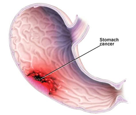 intestinal cancer symptoms picture 9