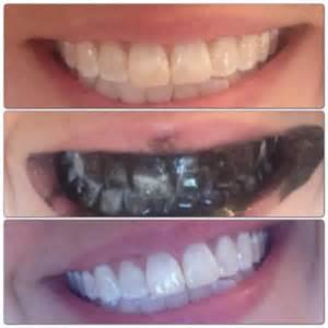 teeth natural whiten whitens whitener whitening picture 3