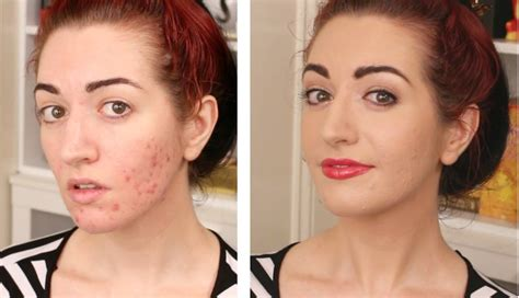 acne scar coverup picture 15