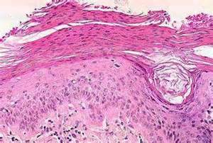 dysplastic cells skin picture 7