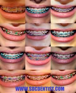 colored braces teeth picture 9