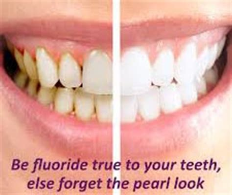 fluoride treatment for teeth picture 9