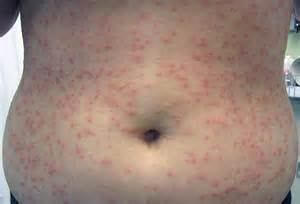hives virus picture 15