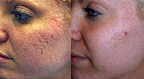 msm cream acne scars picture 5