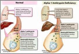 alpha 1 tripton liver disease picture 1