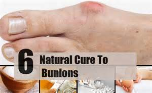 relieve bunion twinges of pain picture 17
