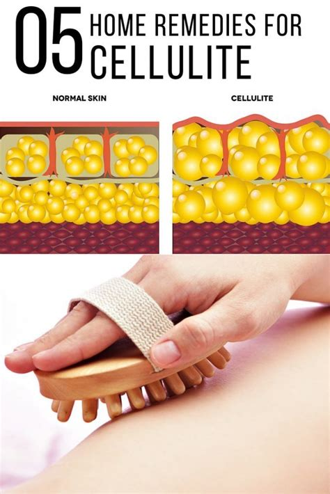 remove cellulite at home remedies picture 5