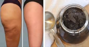 brazilian coffee cellulite creams picture 1