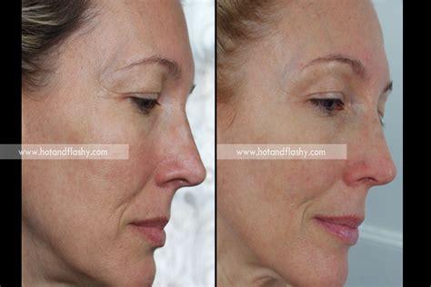 acne treatment aloe free picture 7
