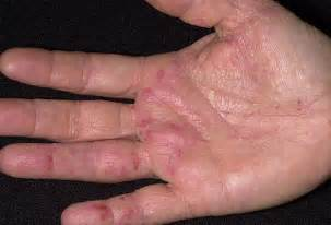 skin condition with small blisters picture 17