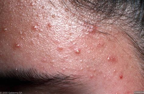 yeast infection and folliculitis picture 1