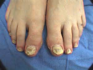 foot nail fungus picture 3