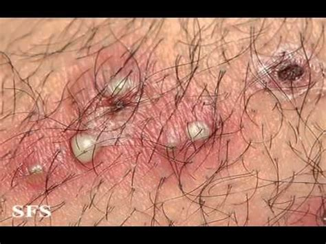 skin rash from waxing picture 19