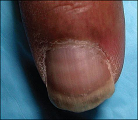 white line in nail picture 13