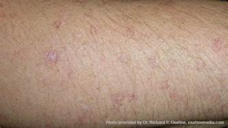 american skin cancer picture 5